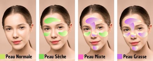 Comment prendre soin d'une peau sensible ou allergique ? Les types de peaux