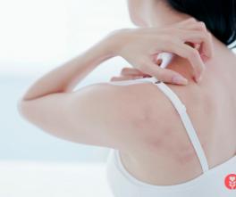 Qu'est-ce que la dermatite atopique ou l'atopie _